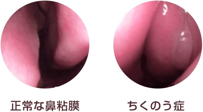 副鼻腔炎の症状と原因は?