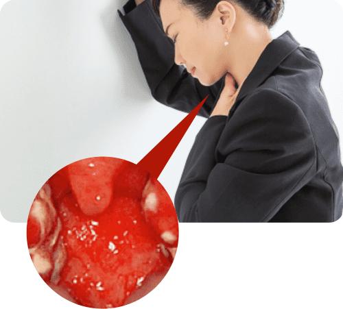 扁桃炎の症状と原因は?